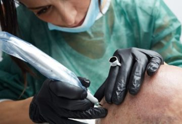Tatouage du cuir chevelu : la solution contre la calvitie ? 3