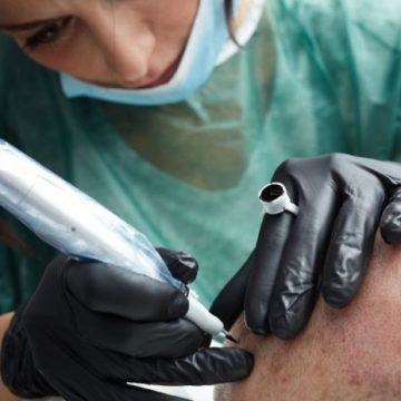 Tatouage du cuir chevelu : la solution contre la calvitie ? 146